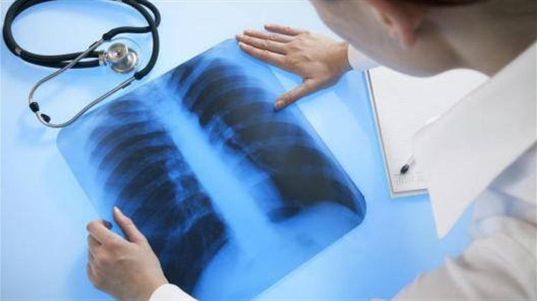 На Прикарпатті знизилась захворюваність на туберкульоз